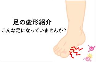 足の変形のイメージ
